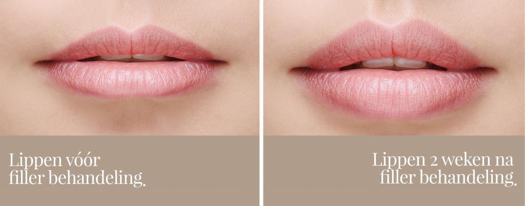 voor na lip fillers betan clinics